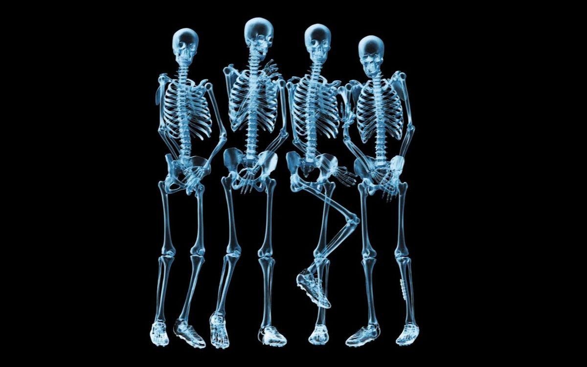 Фото бесплатно люди, футболисты, стенка, рентген, фото, скелеты, разное